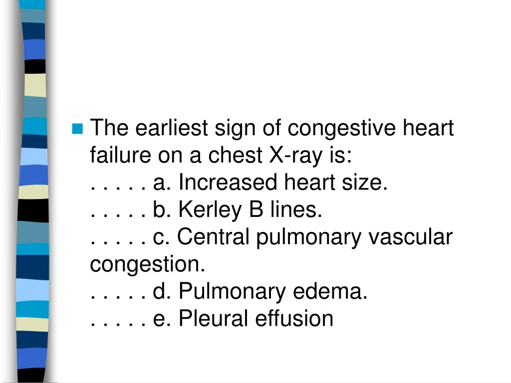 The earliest sign of congestive heart failure on a chest X-ray is: