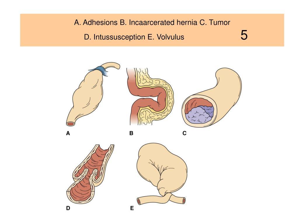 A. Adhesions B. Incaarcerated hernia C. Tumor