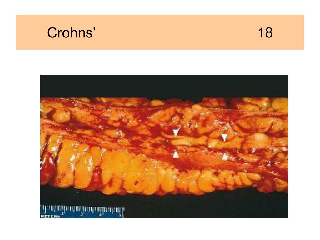 Crohns'                                         18
