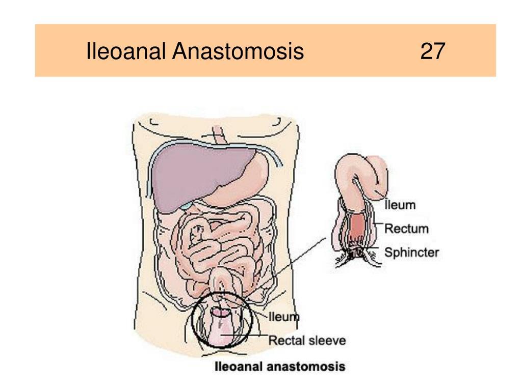 Ileoanal Anastomosis                  27