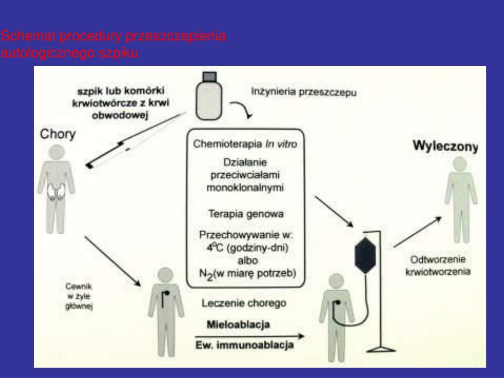 Schemat procedury przeszczepienia