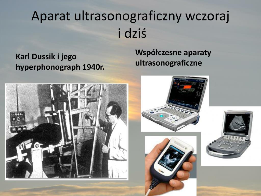 Aparat ultrasonograficzny wczoraj