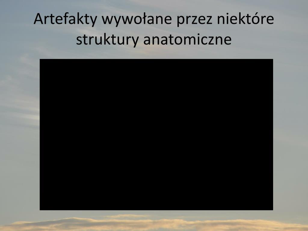 Artefakty wywołane przez niektóre struktury anatomiczne