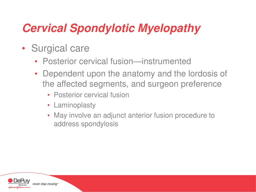 Cervical Spondylotic Myelopathy
