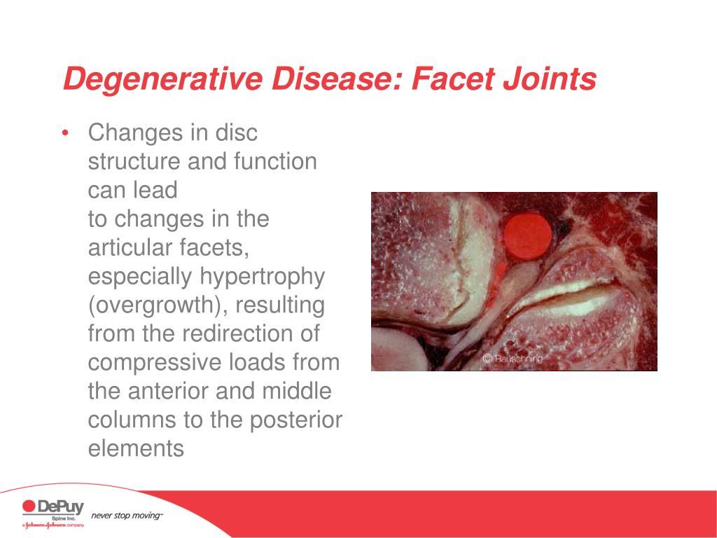 Degenerative Disease: Facet Joints