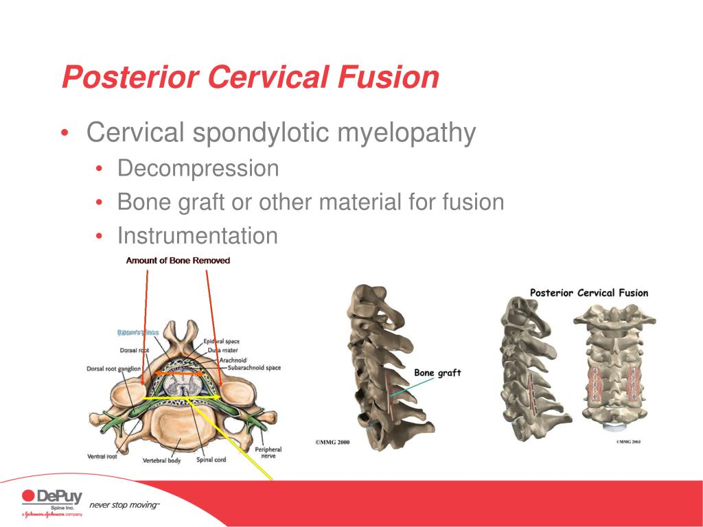 Posterior Cervical Fusion