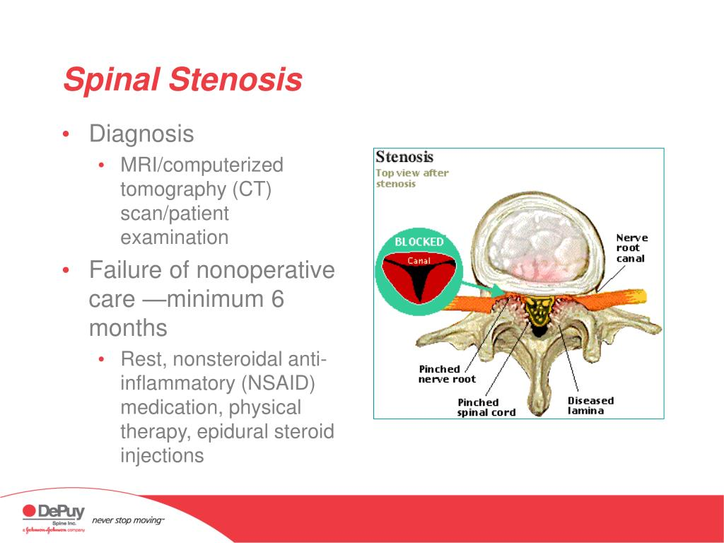 epidural steroid injection for cervical spinal stenosis