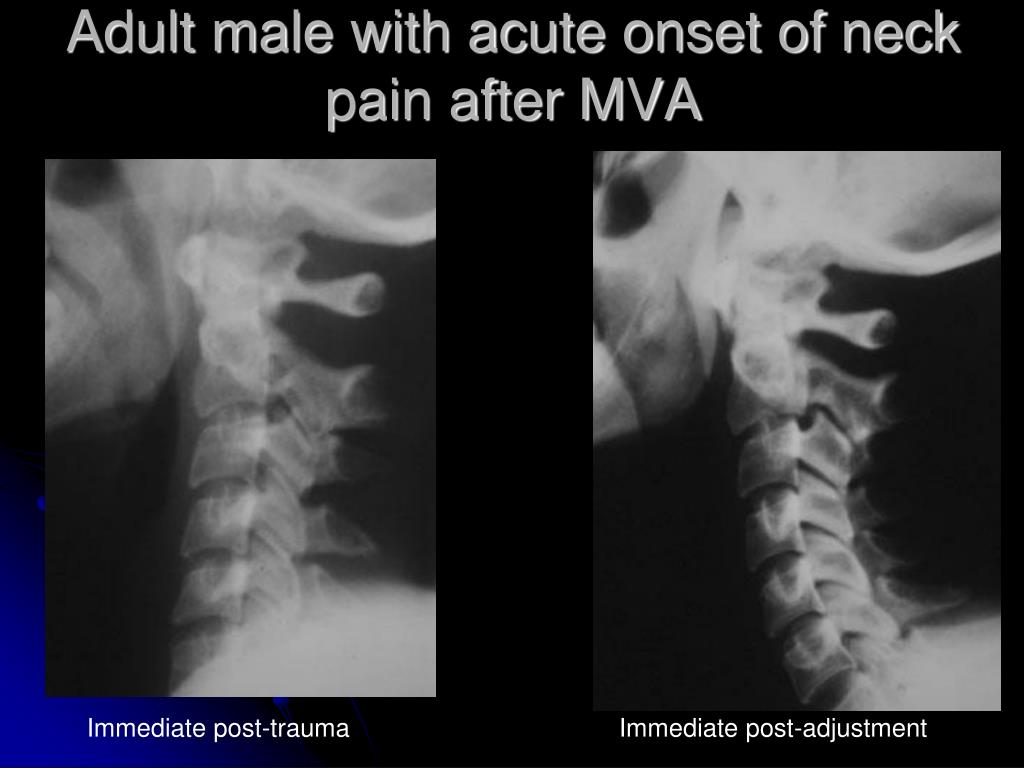 Adult male with acute onset of neck pain after MVA