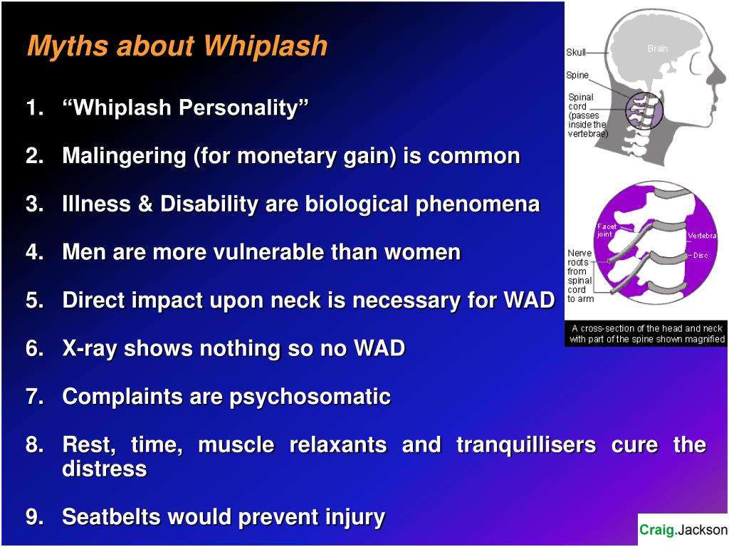 Myths about Whiplash