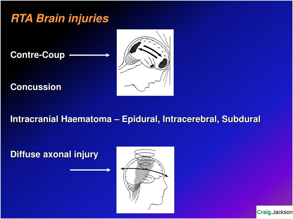 RTA Brain injuries