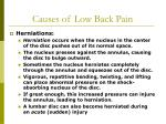 causes of low back pain19