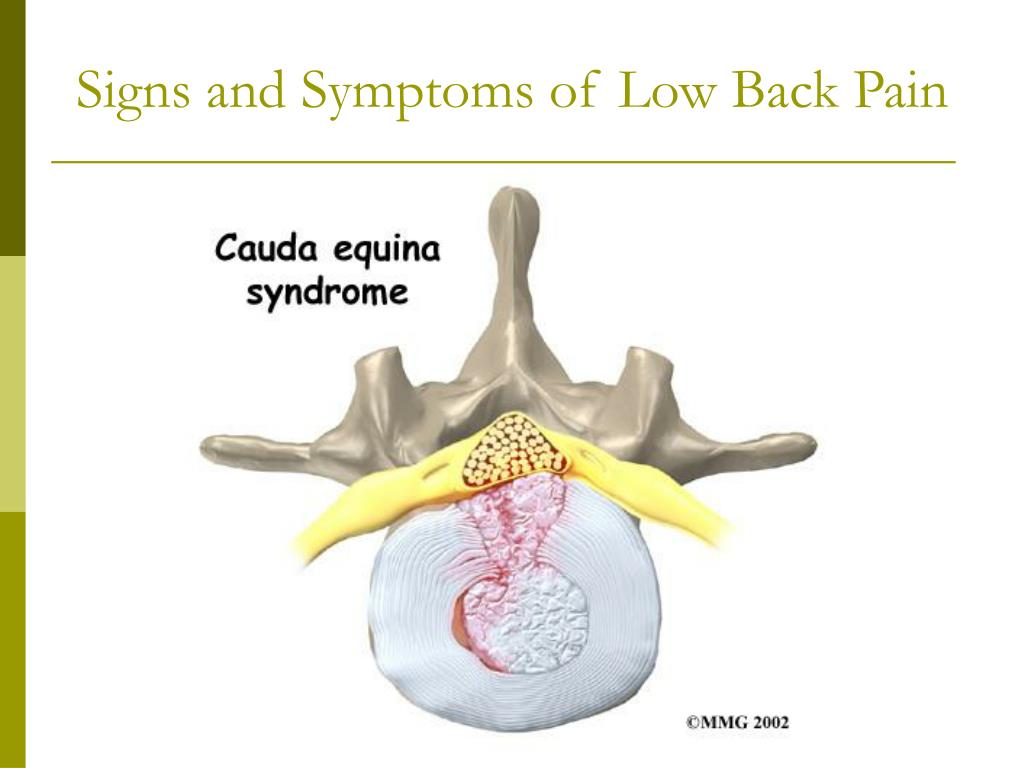 Signs and Symptoms of Low Back Pain