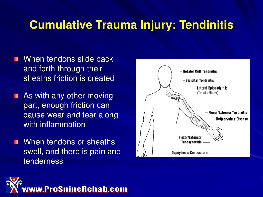 Cumulative Trauma Injury: Tendinitis