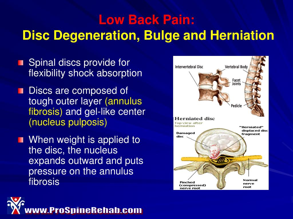 Low Back Pain: