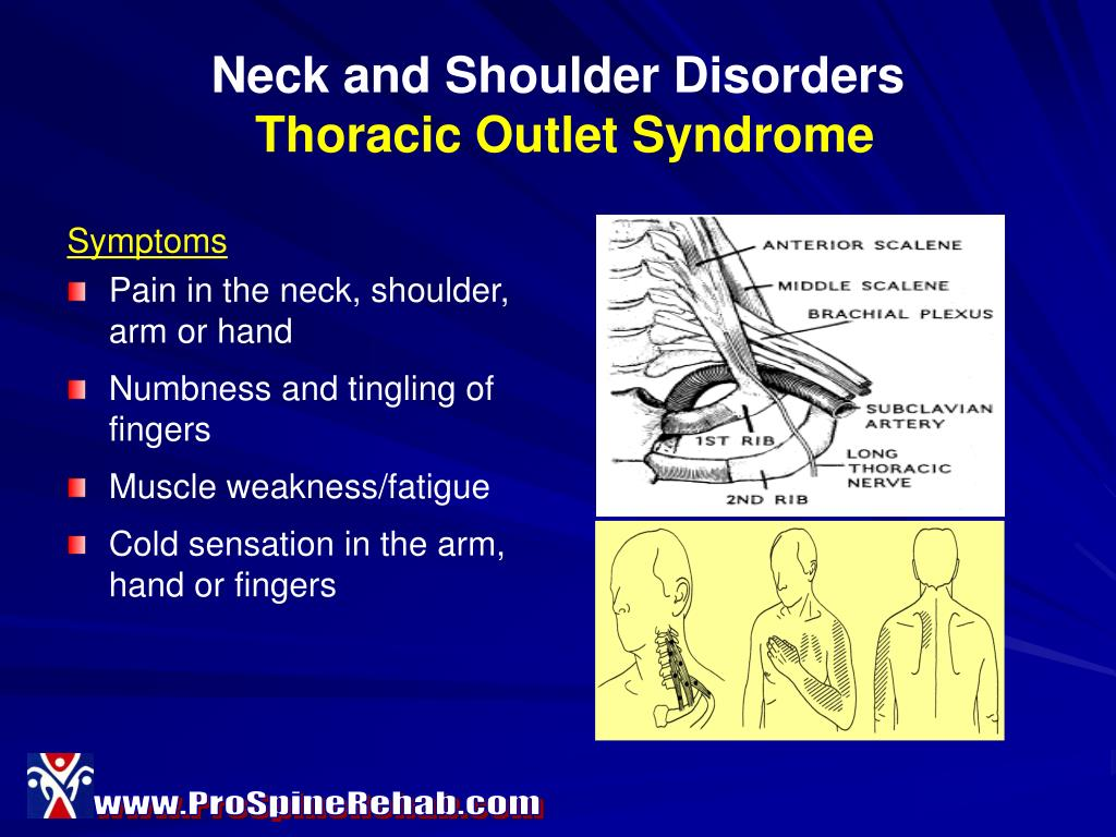 Neck and Shoulder Disorders