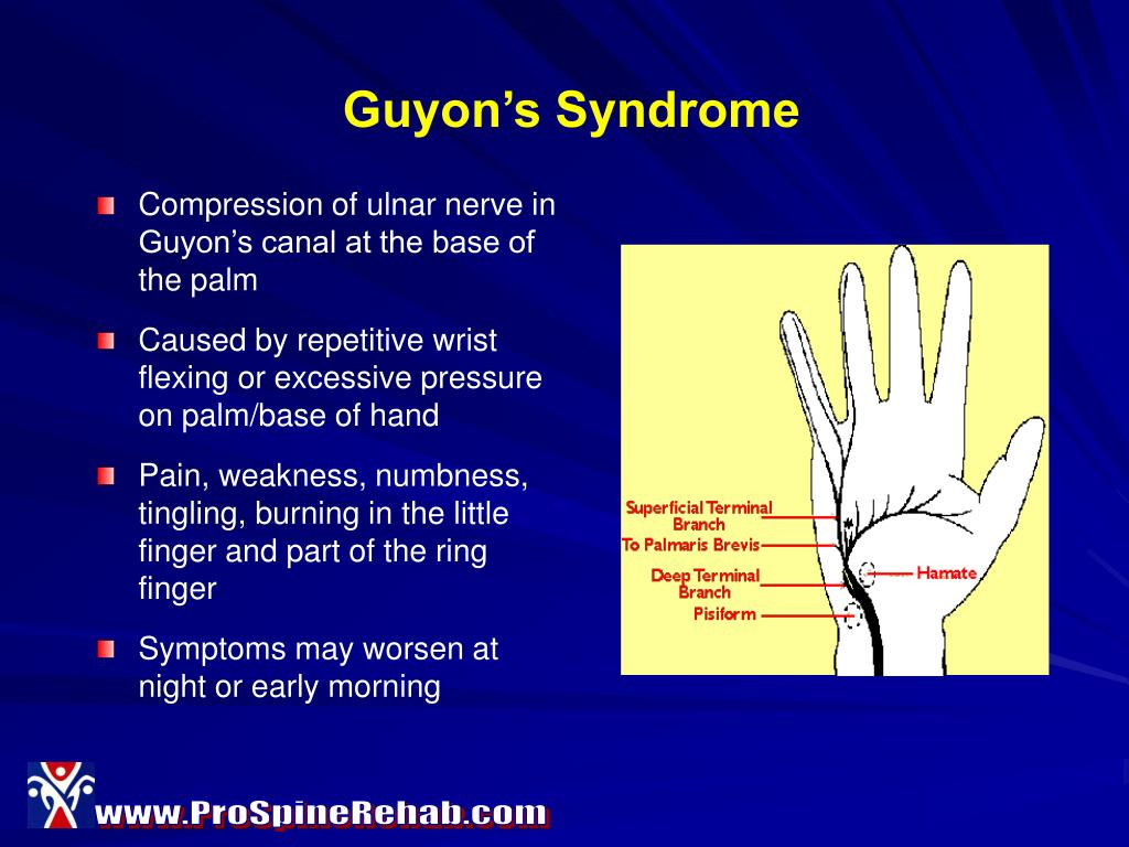 Guyon's Syndrome
