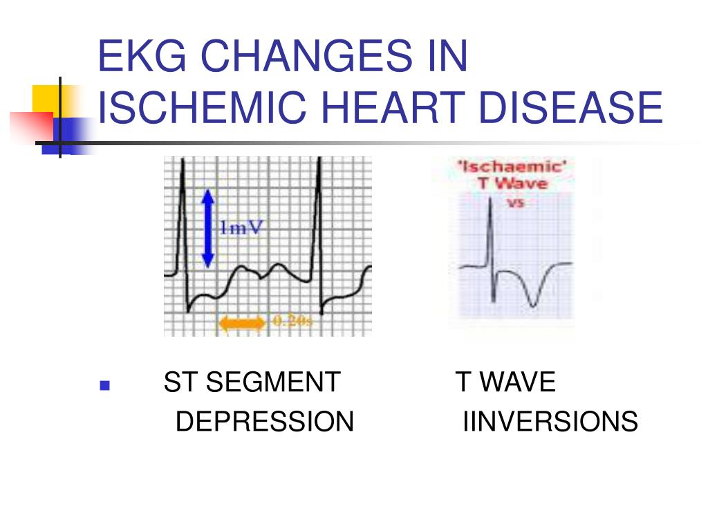 EKG CHANGES IN ISCHEMIC HEART DISEASE
