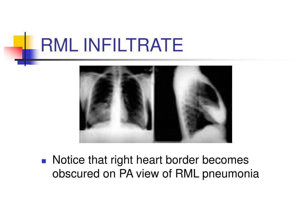 RML INFILTRATE