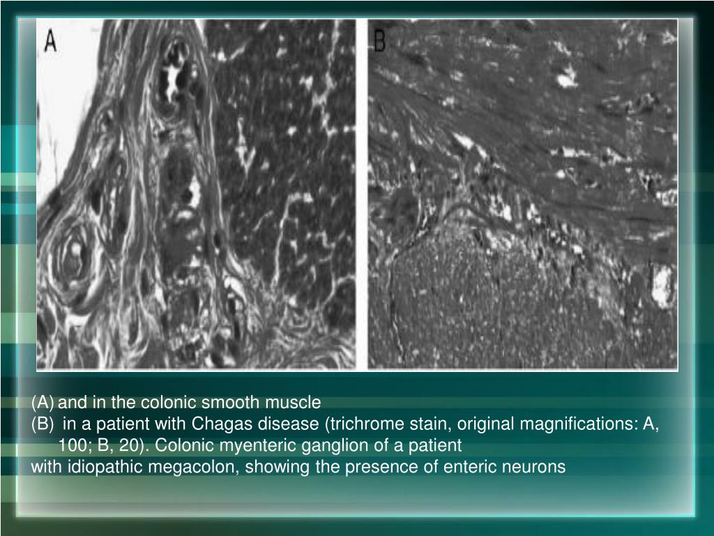 and in the colonic smooth muscle