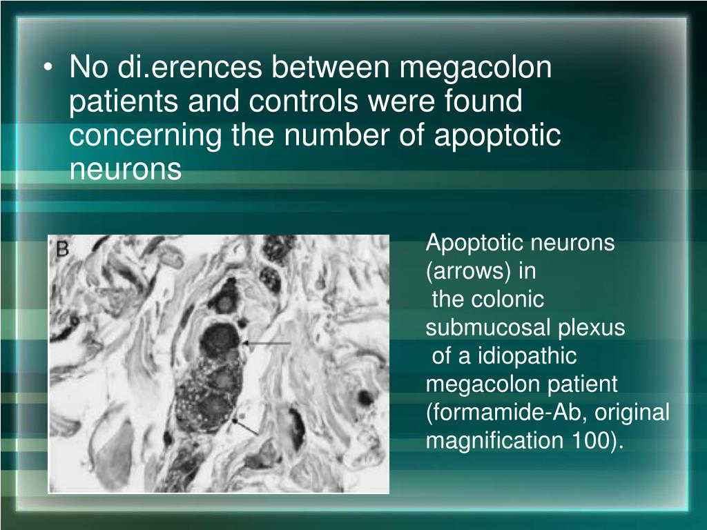 No di.erences between megacolon patients and controls were found concerning the number of apoptotic neurons