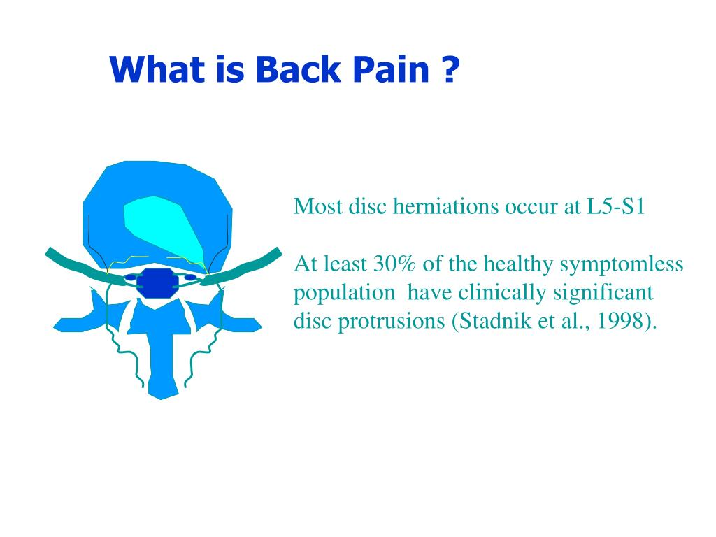 What is Back Pain ?