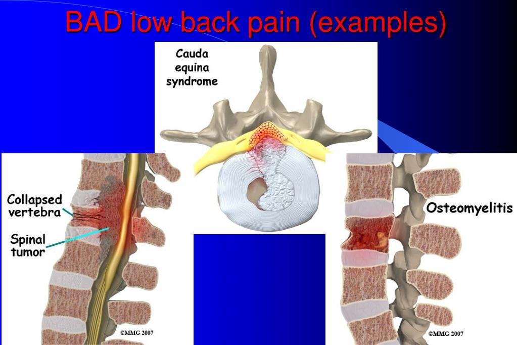 BAD low back pain (examples)