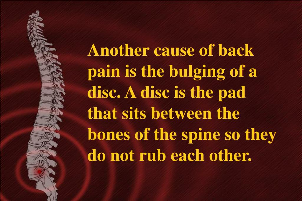 Another cause of back pain is the bulging of a disc. A disc is the pad that sits between the bones of the spine so they do not rub each other.