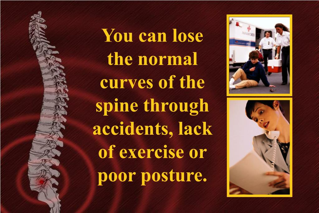 You can lose the normal curves of the spine through accidents, lack of exercise or poor posture.
