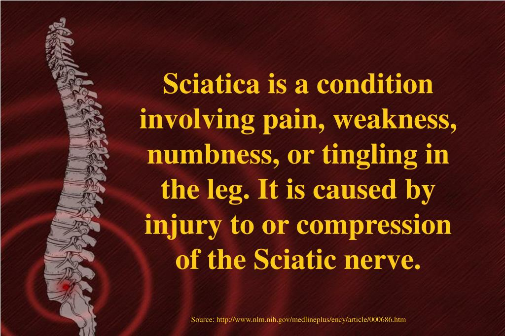 Sciatica is a condition involving pain, weakness, numbness, or tingling in the leg. It is caused by injury to or compression of the Sciatic nerve.