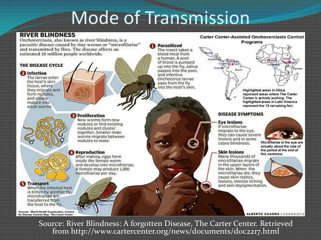 Ppt River Blindness Onchocerciasis Powerpoint