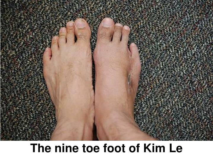 The nine toe foot of Kim Le