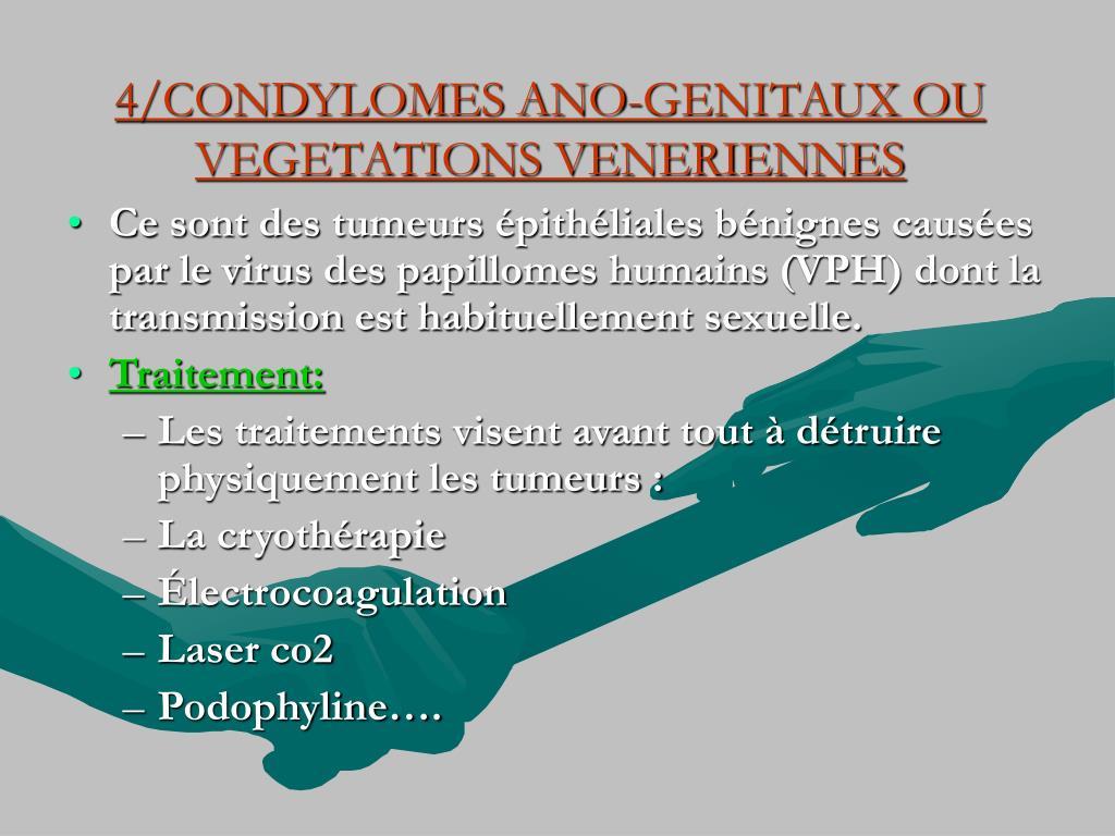 4/CONDYLOMES ANO-GENITAUX OU VEGETATIONS VENERIENNES
