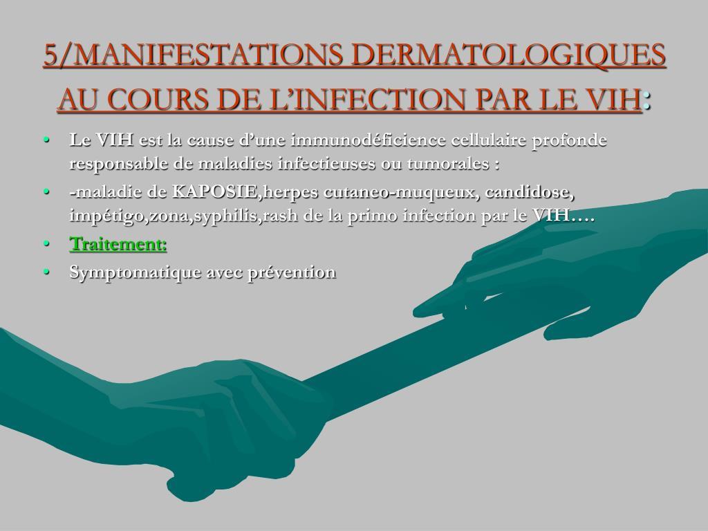 5/MANIFESTATIONS DERMATOLOGIQUES AU COURS DE L'INFECTION PAR LE VIH