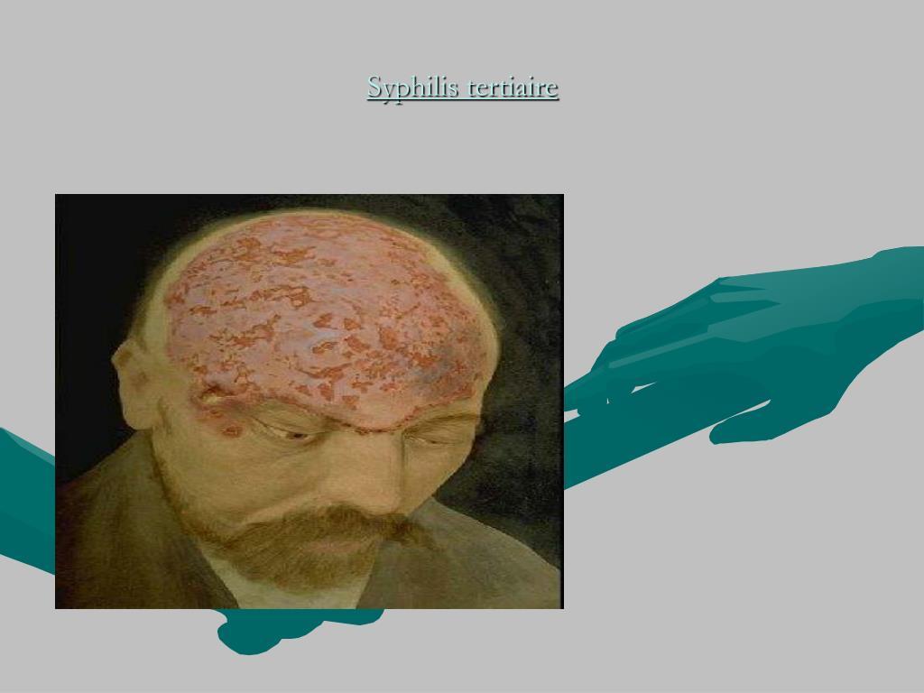 Syphilis tertiaire