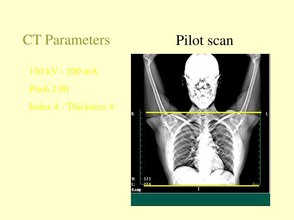 CT Parameters