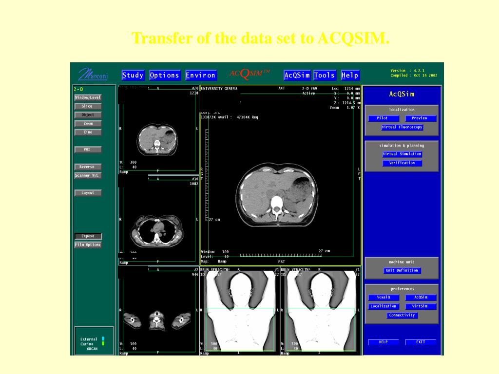 Transfer of the data set to ACQSIM.