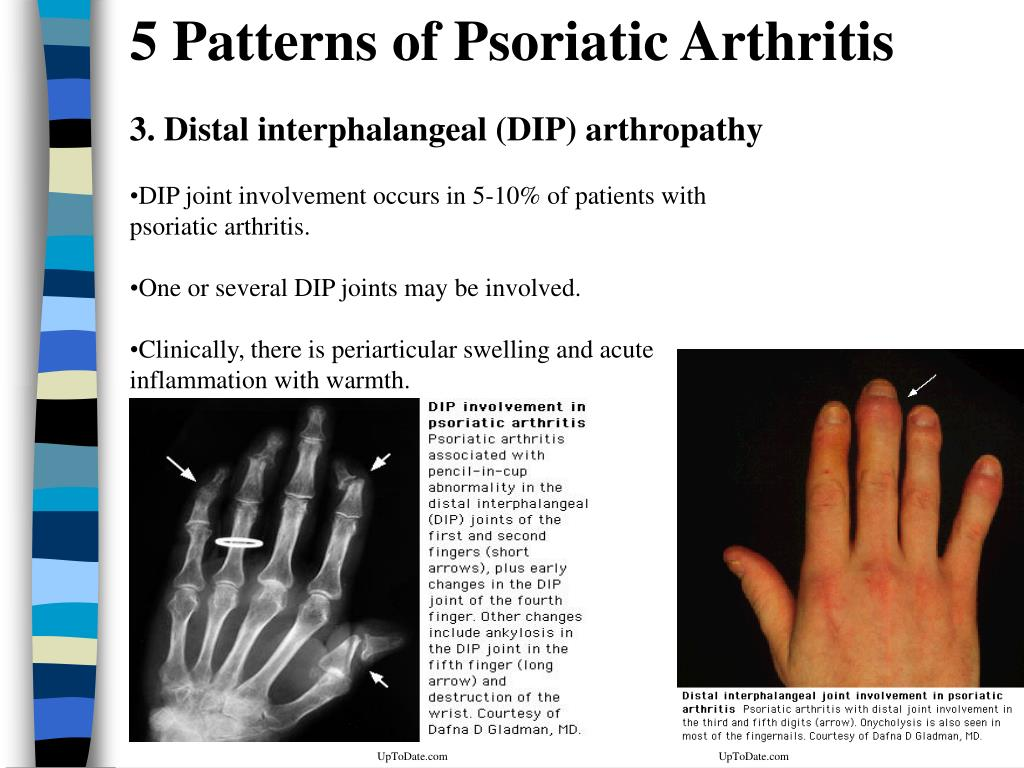 5 Patterns of Psoriatic Arthritis