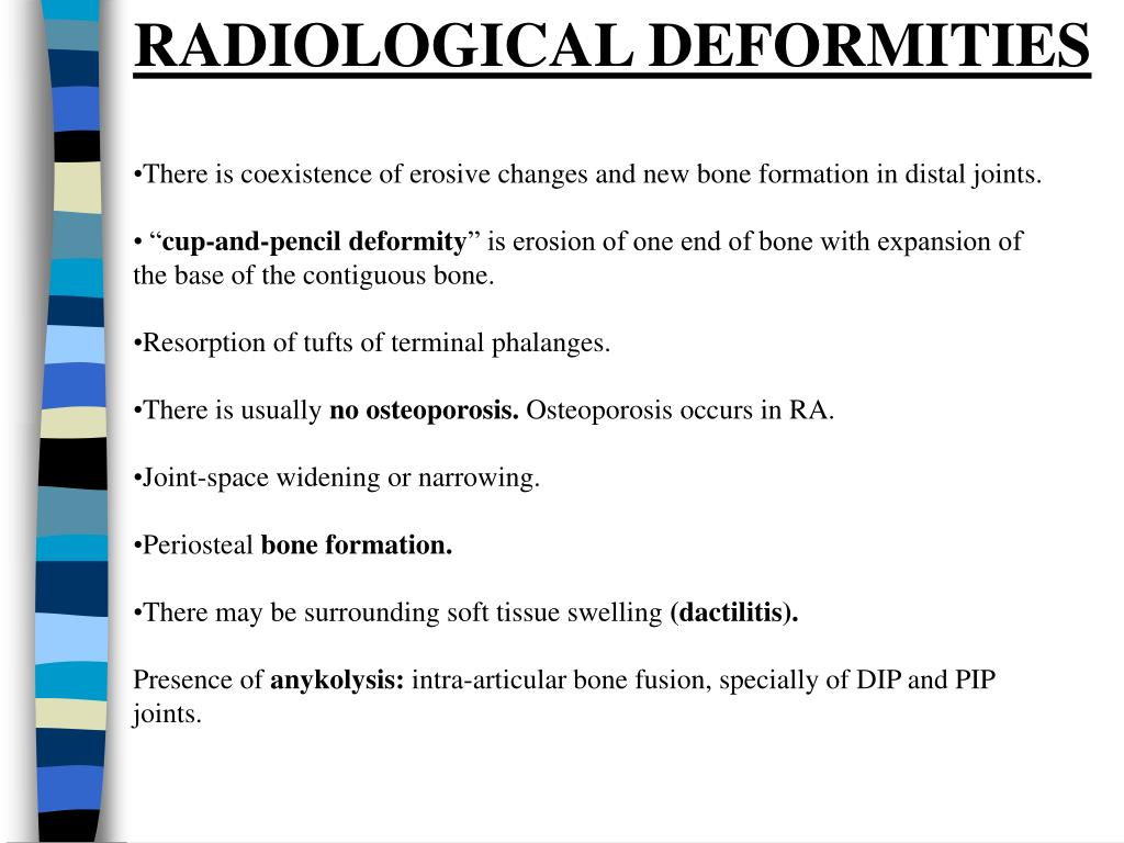 RADIOLOGICAL DEFORMITIES
