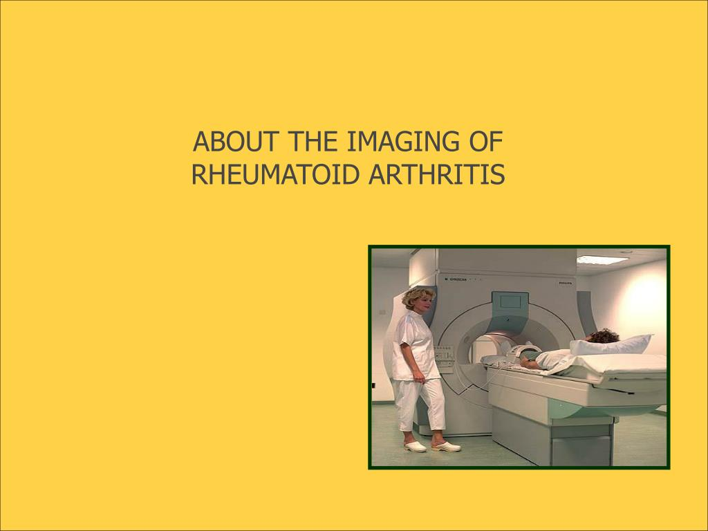 ABOUT THE IMAGING OF