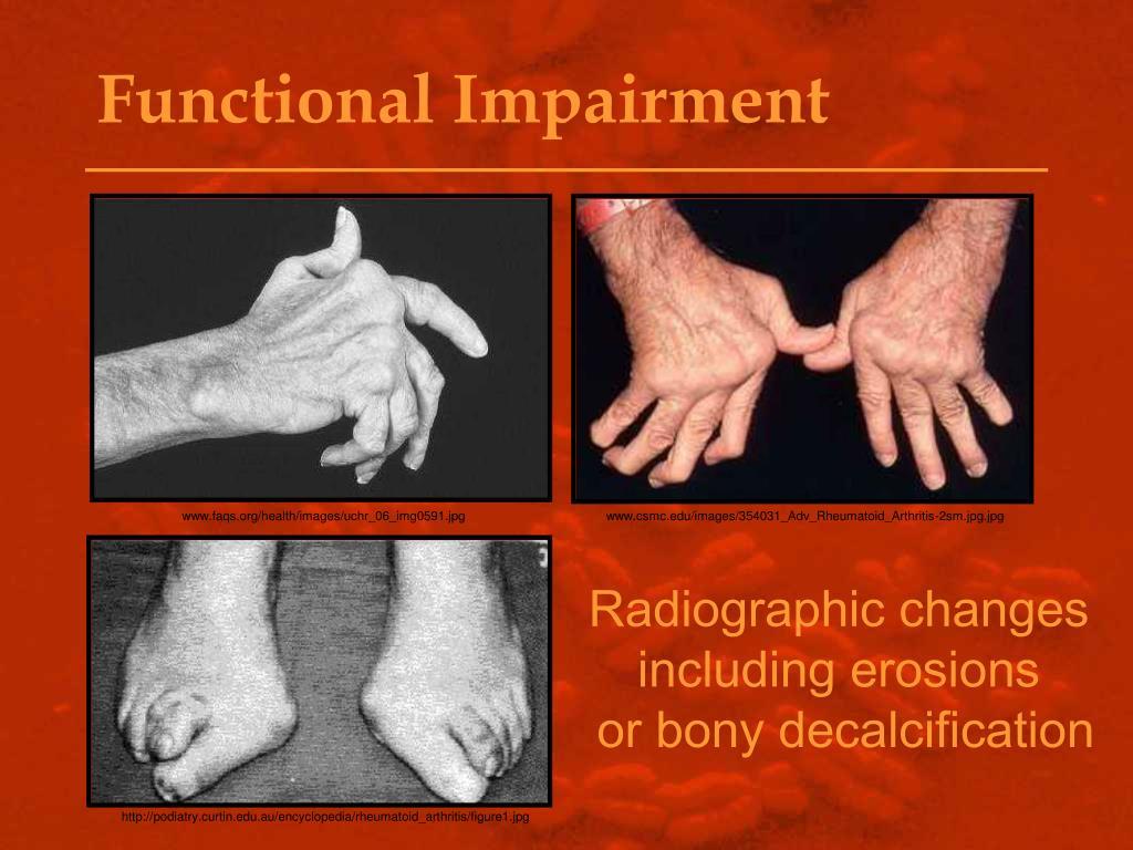 Functional Impairment