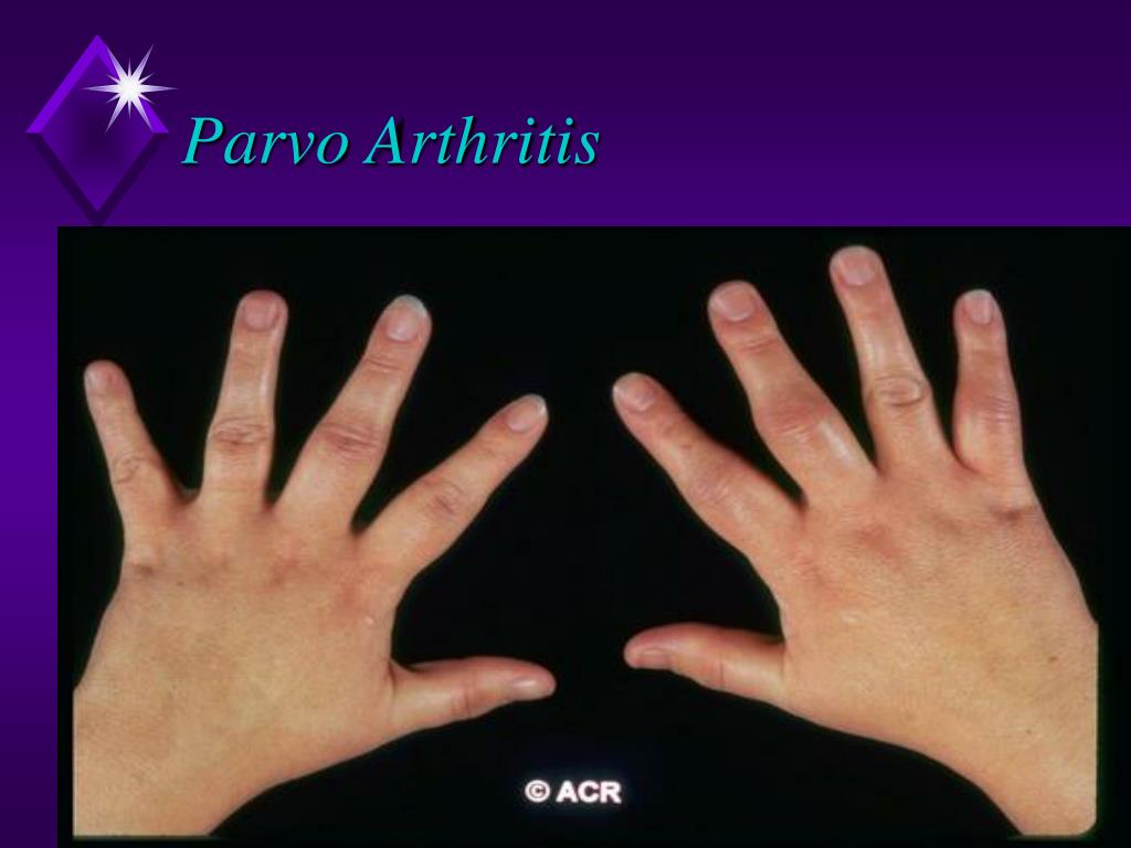 Parvo Arthritis
