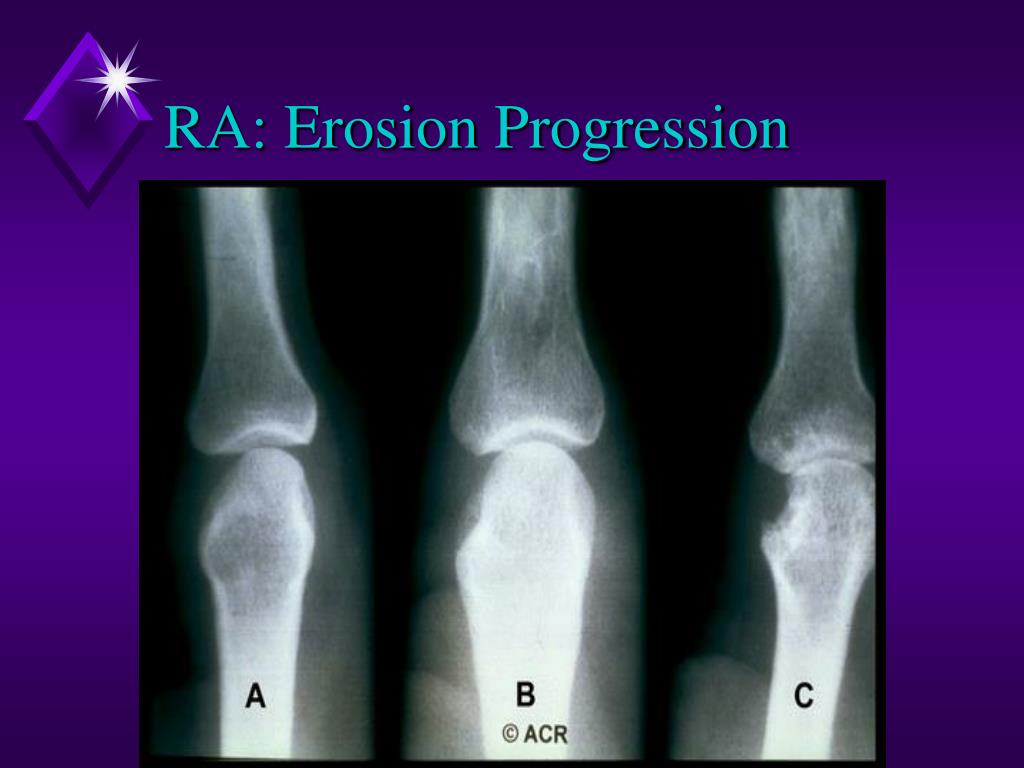 RA: Erosion Progression