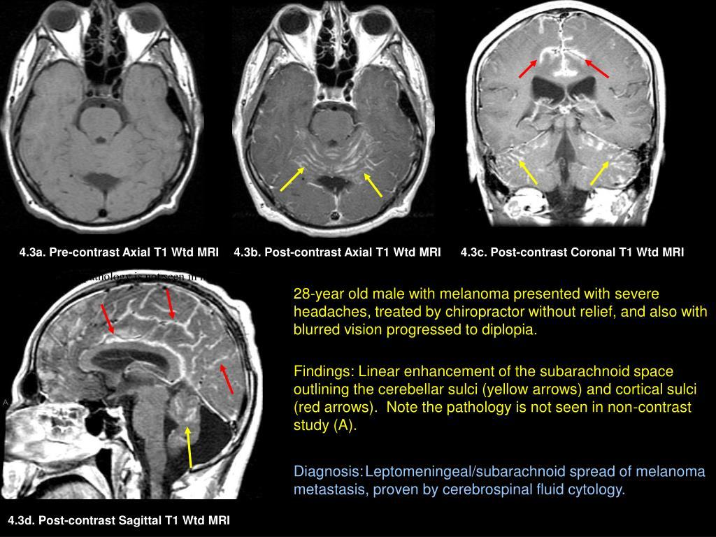 4.3a. Pre-contrast Axial T1 Wtd MRI