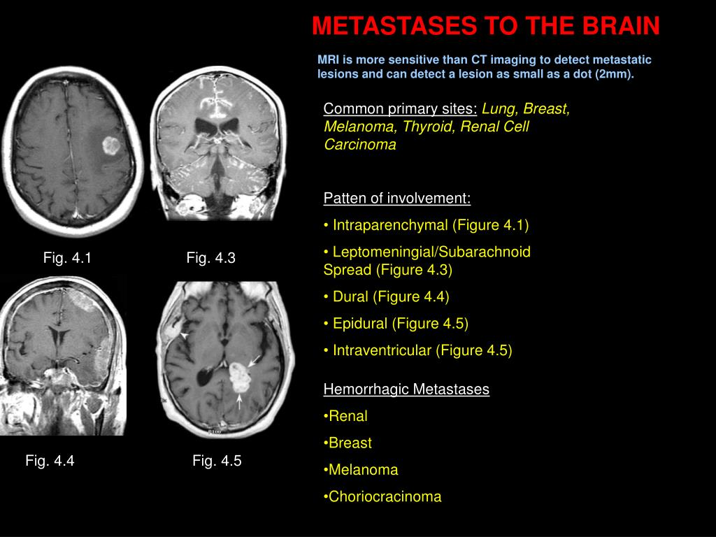 METASTASES TO THE BRAIN