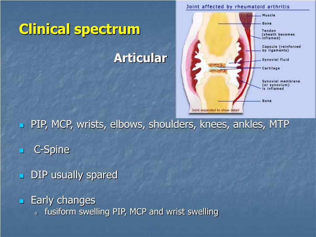 Clinical spectrum