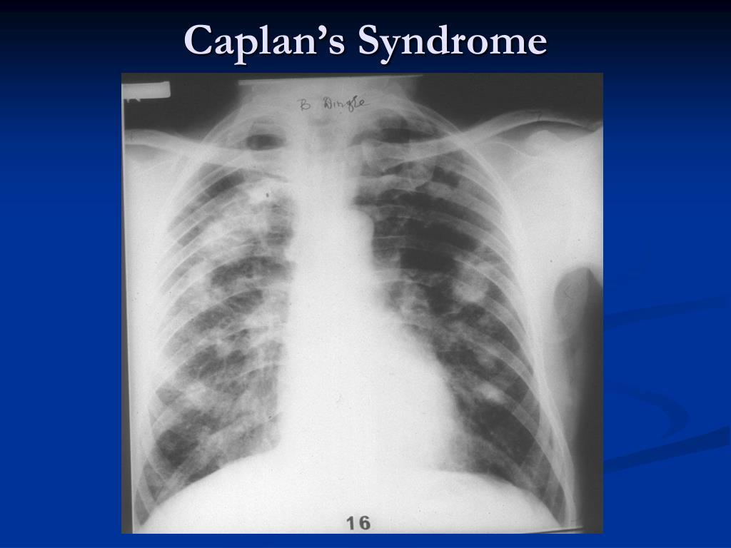 Caplan's Syndrome