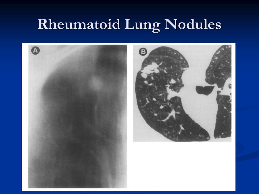 Rheumatoid Lung Nodules
