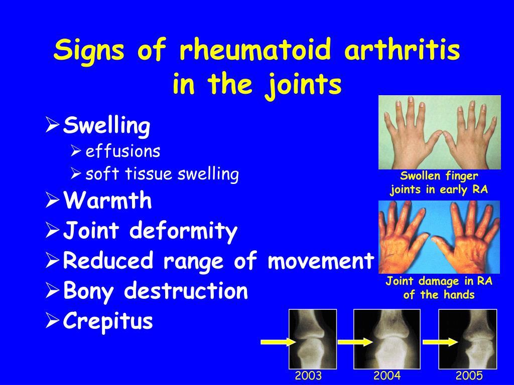 Swollen finger joints in early RA