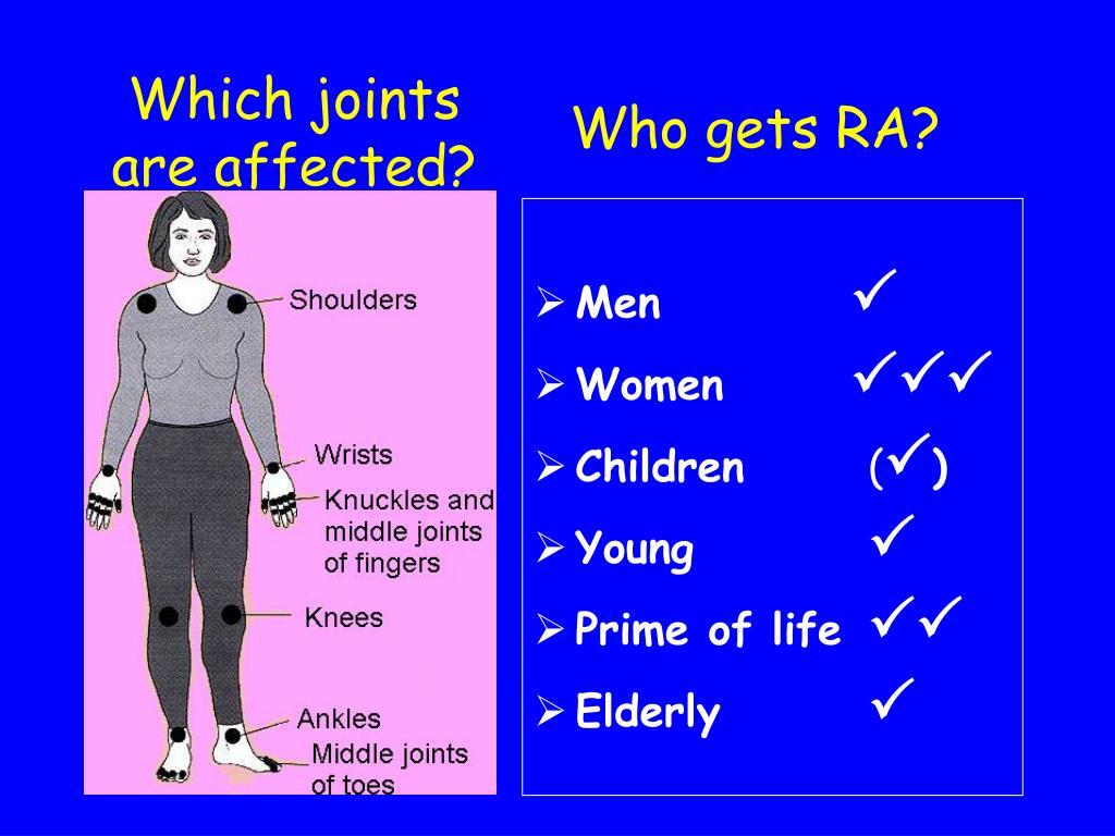 Who gets RA?