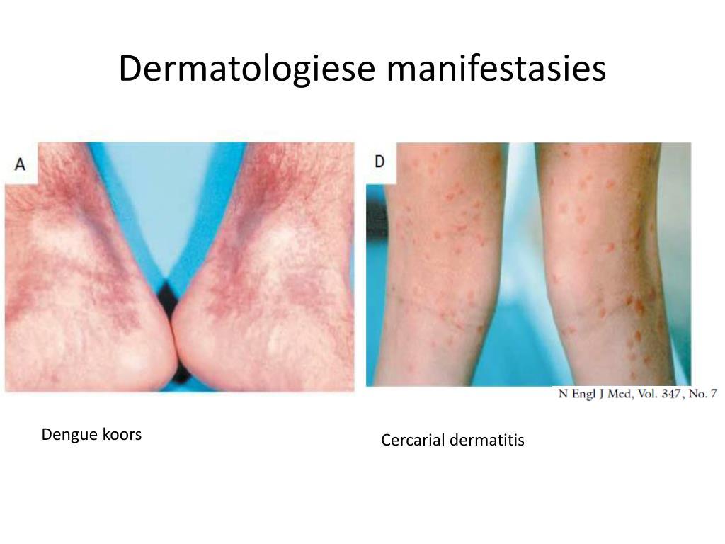 Dermatologiese manifestasies